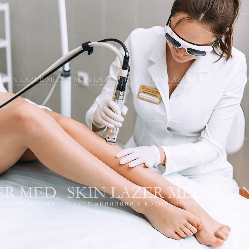 лазерная эпиляция ног фото
