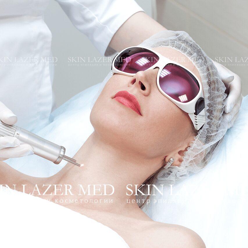 Лазерное лечение акне фото